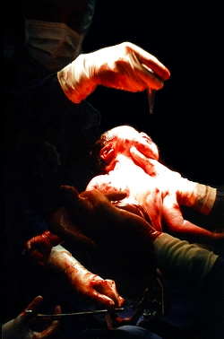 Caesarean Birth